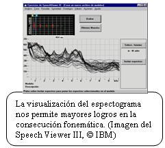 Imagen del Programa Speech Viewer III